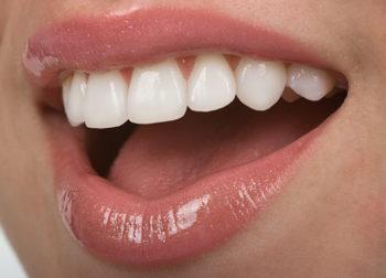 Clareamento Dental – Mitos X Verdades