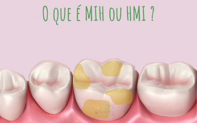 MIH ou HMI – Hipomineralização dos Molares e Incisivos