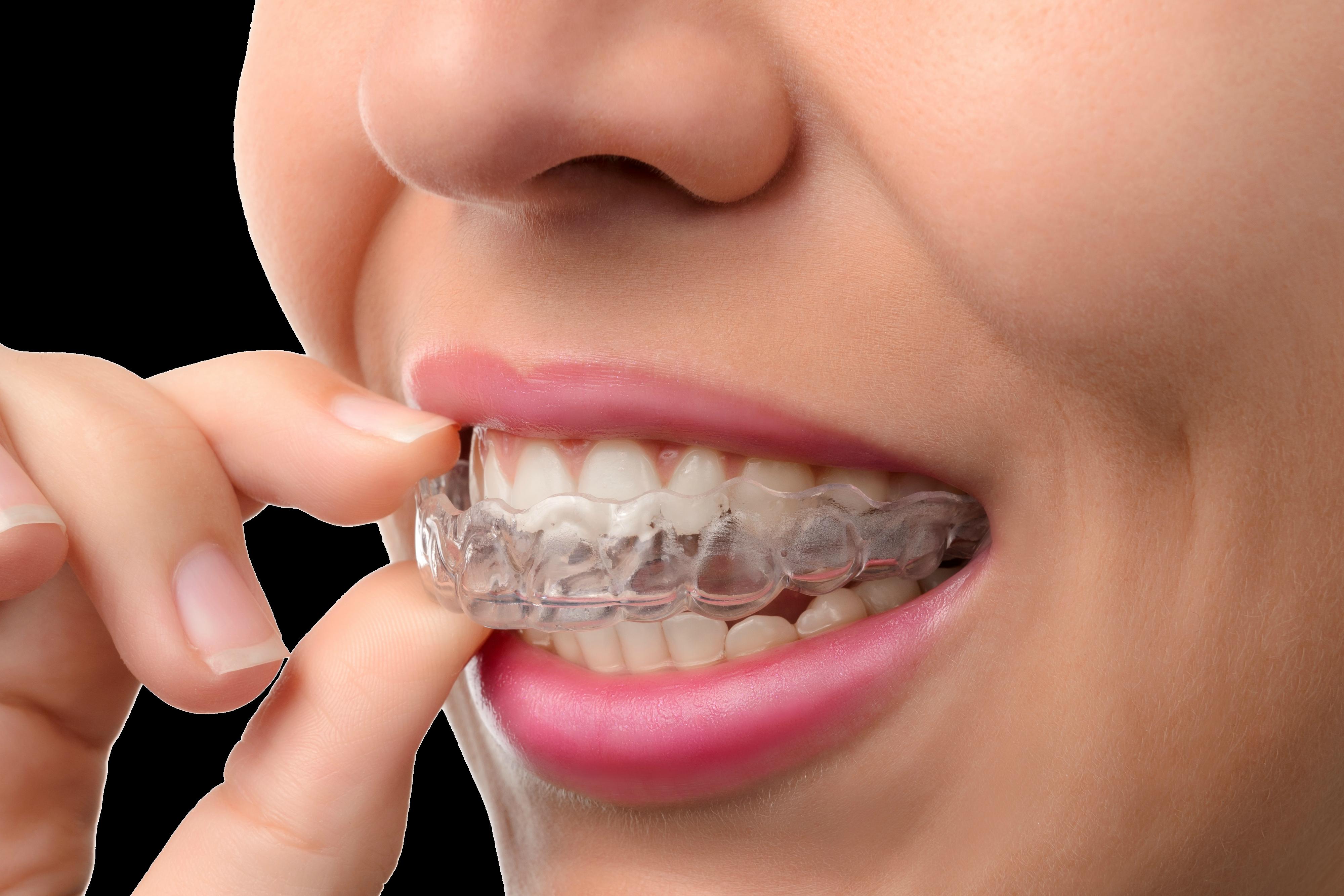 O que é Ortodontia?