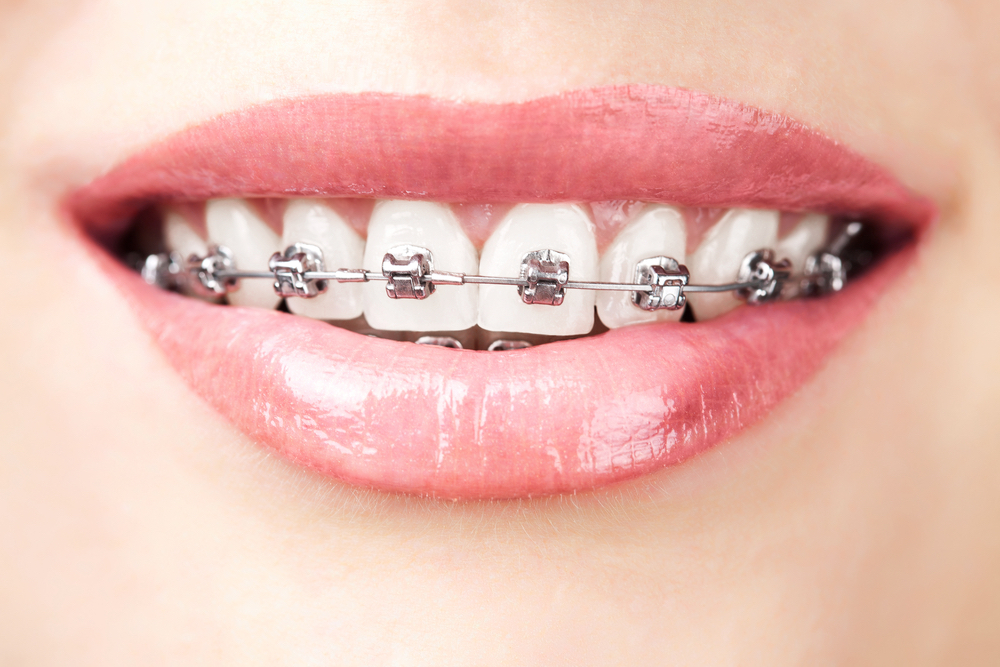 Tratamento ortodôntico: quais são as opções?