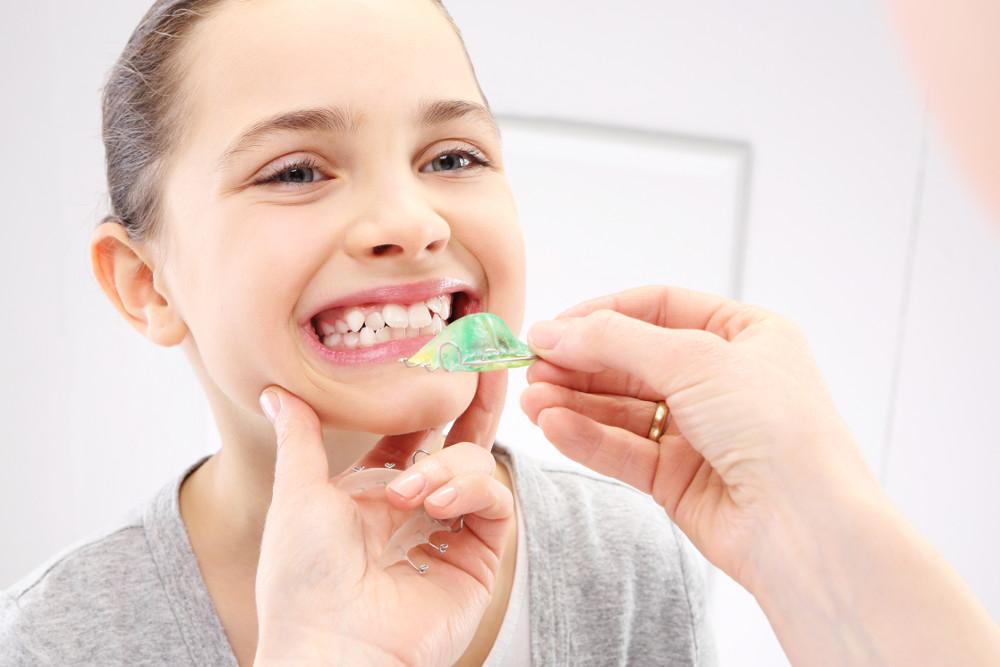 Os dentes estão nascendo tortos, preciso usar aparelho?