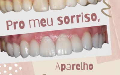 Para o meu sorriso, estética ou ortodontia?