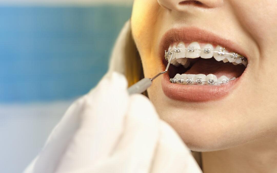 Você já teve recidiva ortodôntica após o fim de um tratamento com aparelho?
